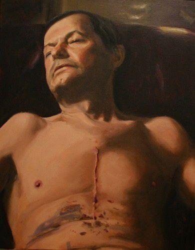 """Life, or death,"" by Angela Parragi"