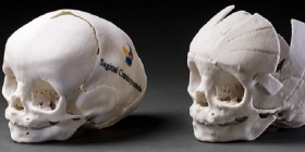3-D model nylon skulls, on loan from David David, craniofacial surgeon, Australian of the Year 2018, South Australia. Photo, National Museum of Australia